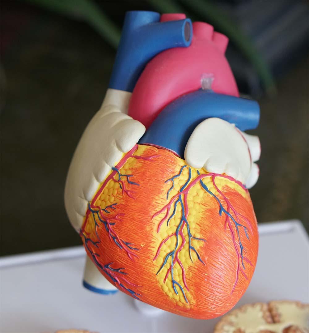 Neurological Damage Due To Cardiac Arrest