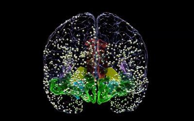 Personalized Brain Stimulation Alleviates Severe Depression Symptoms