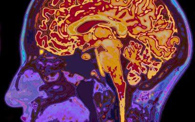Could leak in blood-brain barrier cause poor memory?