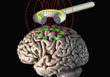 Brain Mapping Method Illuminates Targets for Treating Neuropsychiatric Symptoms